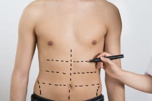 Doing Cosmetic Surgery the Right Way - Dr. D'Amico