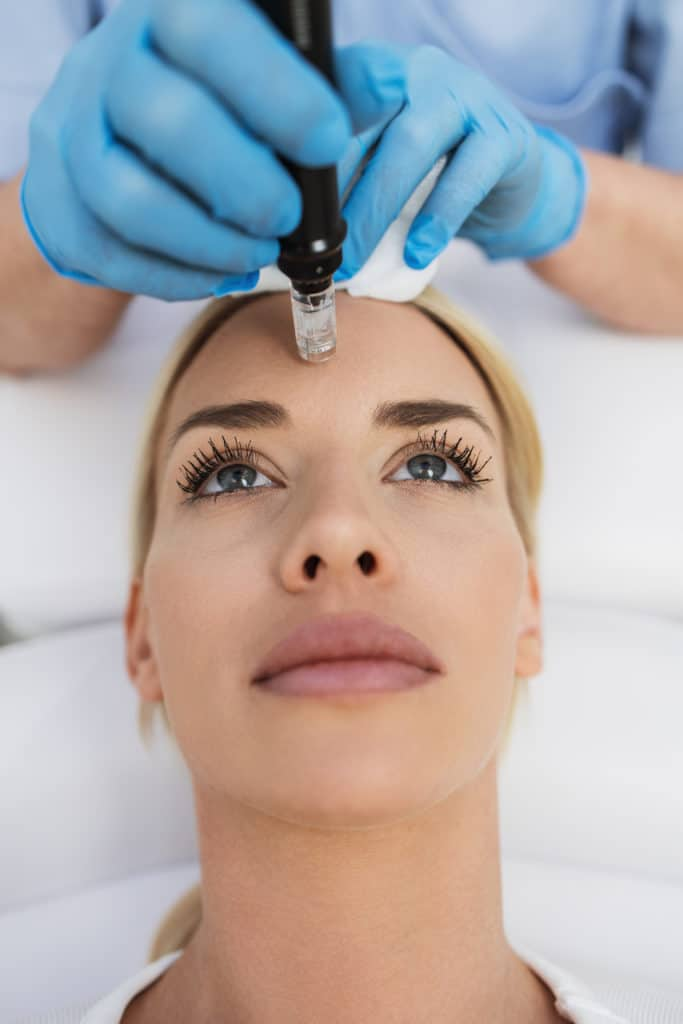 A beautiful blonde microneedling treatment at a beauty clinic.